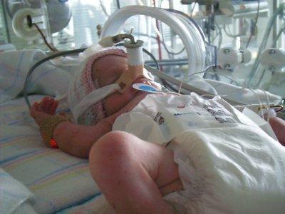 В Великобритании врачи смогли выходить новорожденную девочку весом 346 грамм