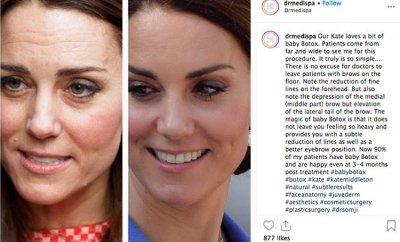 Врач показал фото Кейт Миддлтон до и после пластических операции
