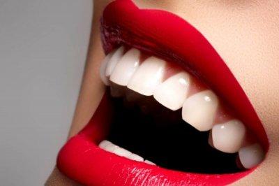 Врачи рассказали, какие продукты способствуют отбеливанию зубов