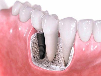 Ученые считают, что зубные импланты опасны