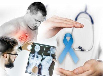 Доктор Мясников назвал неожиданные симптомы онкологии