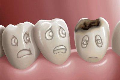 Ученые: сладкие газированные напитки ускоряют износ зубов