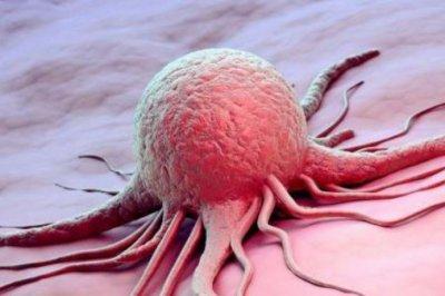 Телеведущий рассказал об первых симптомах рака поджелудочной железы, который ему диагностировали