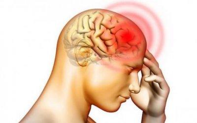 Доктор Мясников рассказал, какая головная боль указывает на рак мозга