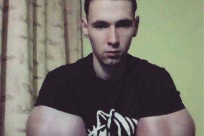 Кириллу Терешину удалили синтол из рук