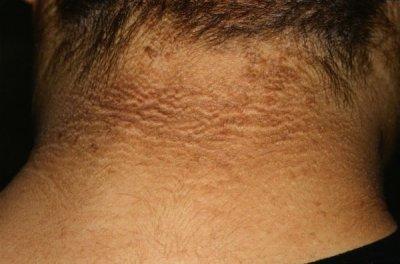 Врачи рассказали, на какие болезни может указывать симптом «грязной шеи»