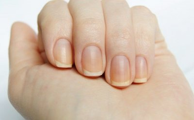 Эксперты рассказали, о каких болезнях может предупреждать исчезновение белых лунок на ногтях