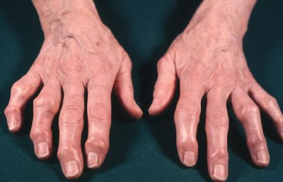 Ревматолог рассказала, как облегчить состояние людей, у которых «узелки» на пальцах