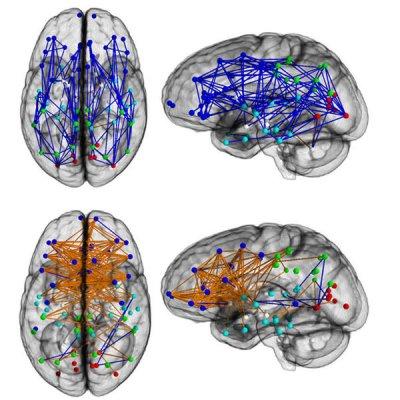 Ученые выяснили, чем мужской мозг отличается от женского