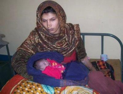 В Индии женщина родила ребенка с сердцем наружу